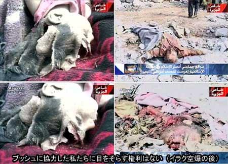 イラク・バスラ空爆被害者