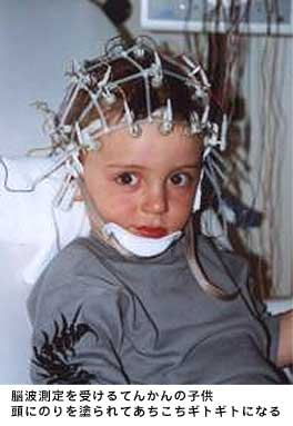 脳波測定を受けるてんかんの子供 頭に糊を塗られてあちこちギトギトになる