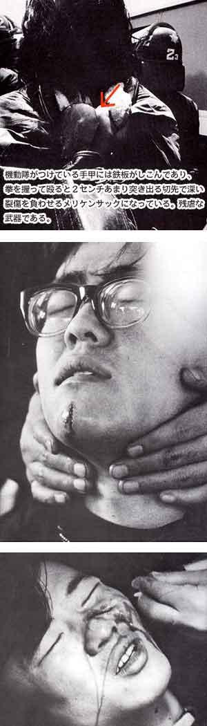 三里塚・成田空港、機動隊がつけている手甲には鉄板がしこんであり、拳を握って殴ると2センチあまり突き出る切先で深い裂傷を負わせるメリケンサックになっている。残虐な武器である。