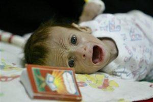 飢餓に苦しむファルージャの子供