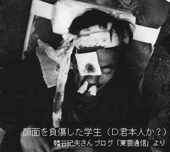 東大闘争で顔面に機動隊のガス銃を受けた学生