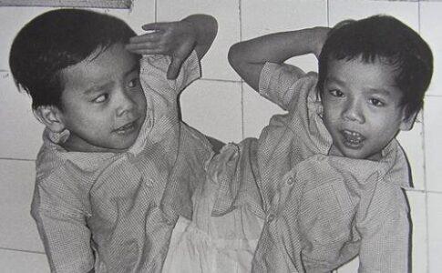 ベトナム枯葉剤被害の象徴となったベトちゃんドクちゃん